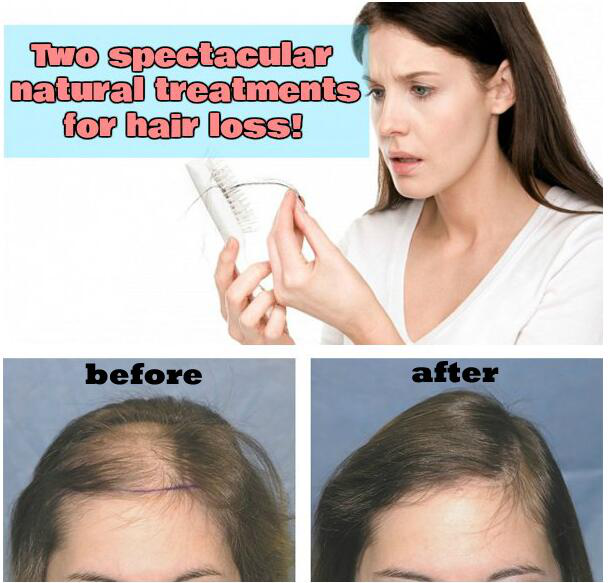 Two spectacular natural treatments for hair loss